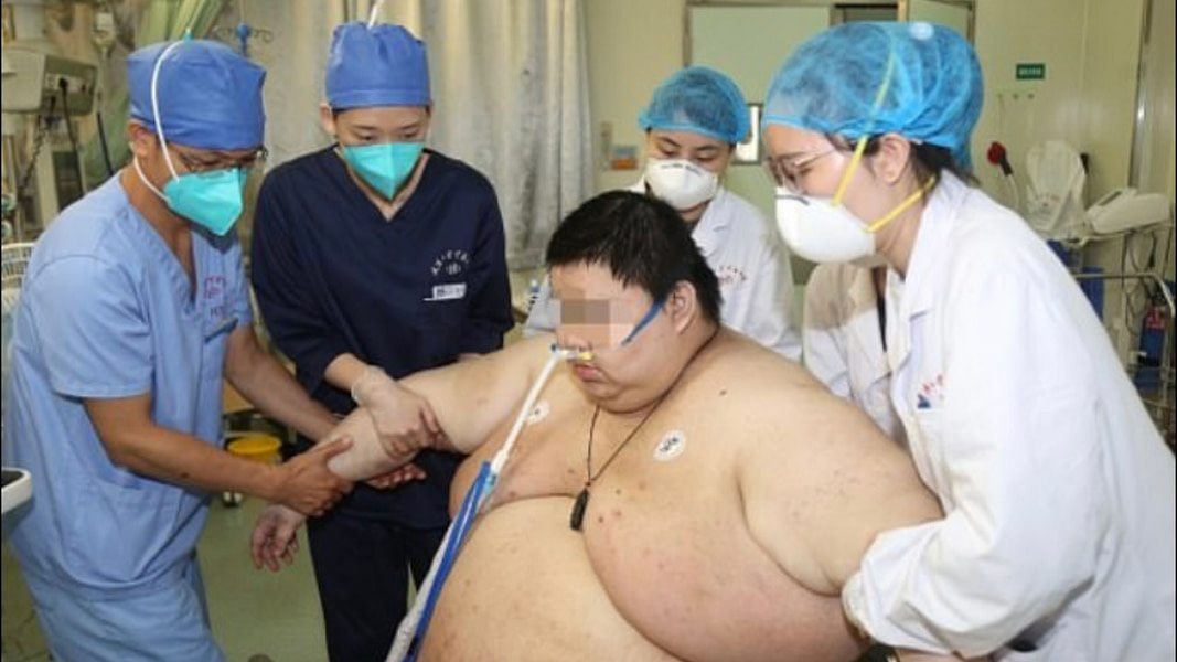 Wuhan Man Gains 225 lbs in Quarantine